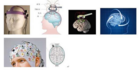 解析经颅磁刺激器治疗问题