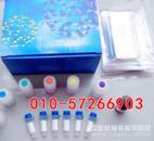 绵羊白介素1β含量检测,IL-1β ELISA测定试剂盒