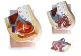女性矢状解剖(2件)