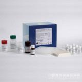 人抗胃壁细胞抗体(AGPA/PCA)酶联免疫试剂盒