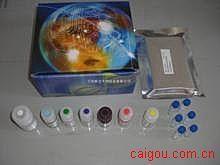 人Elisa-抗天然脱氧核糖核酸抗体试剂盒,(n-DNA-Ab)试剂盒