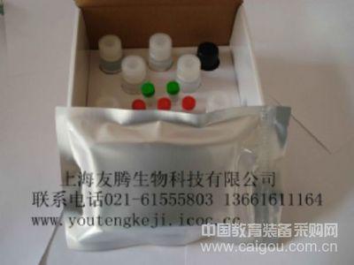 人抗血小板抗体IgG/M/A(PA-IgG/M/A)ELISA Kit