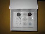 FMS样酪氨酸激酶3ELISA试剂盒厂家代测,进口人(Flt3)ELISA Kit说明书