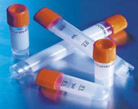 丙酮酸脱氢酶激酶亚型2抗体|PDK2抗体