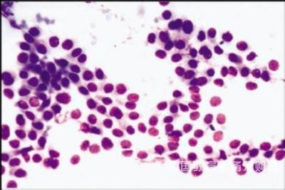 人急性T淋巴细胞白血病细胞,Jurkat