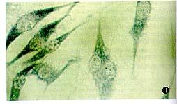 中科院细胞库供应 CBRH-7919 大鼠肝癌细胞株