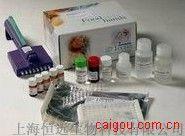 人总蛋白S ELISA试剂盒