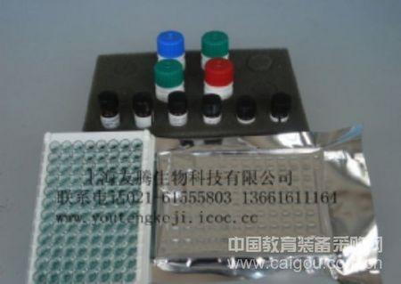 人抗酒石酸酸性磷酸酶5b(TRACP5b) ELISA试剂盒 Human tartrate-resistant acid phosphatase orm 5b ELISA Kit
