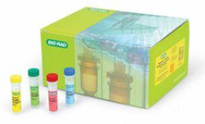 人前列腺特异性抗原(PSA)ELISA试剂盒