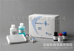 猴肿瘤坏死因子α ELISA Kit代测免费|价格,猴TNF-α ELISA试剂盒使用说明书