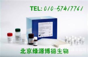 人抗心磷脂抗体IgM Elisa kit价格,ACA-IgM进口试剂盒说明书