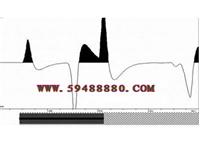 锚索无损检测仪(精度配置) 型号:WZJMH-B2