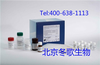 Human抗表皮细胞基底膜抗体,人(EBMZ)elisa试剂盒